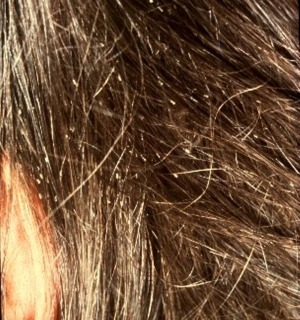head lice nits in hair