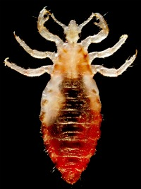 close up picture of head louse